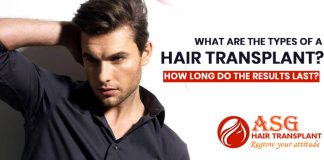 What-are-the-types-of-a-hair-transplant-How-long-do-the-results-last