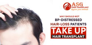 Why should not BP-distressed hair-loss patients take up hair transplant
