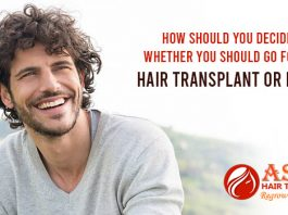 How should you decide whether you should go for a hair transplant or not