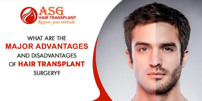 What are the major advantages and disadvantages of hair transplant surgery