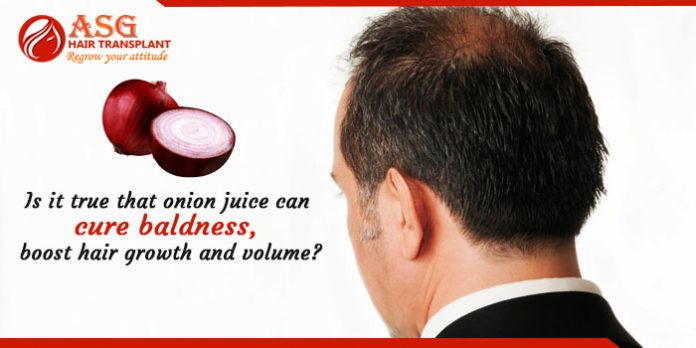Is it true that onion juice can cure baldness boost hair growth and volume