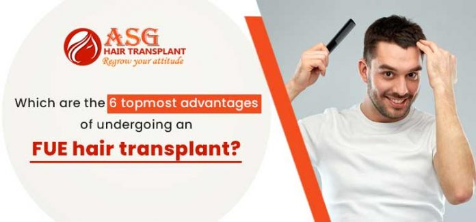 Which are the 6 topmost advantages of undergoing an FUE hair transplant?