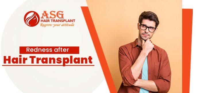 Redness-after-hair-transplant-asg-jpg