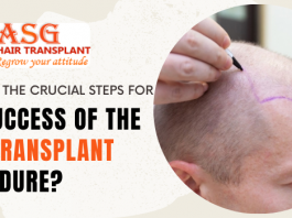 What are the crucial steps for the success of the hair transplant procedure?
