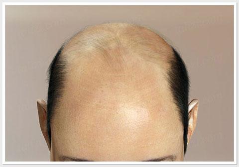 1s ASG Hair Transplant Centre