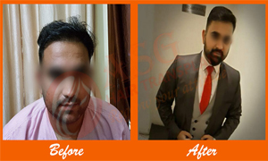 1 Result hair loss Treatment