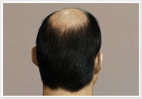 Baldness Type- ASG Hair Transplant Centre