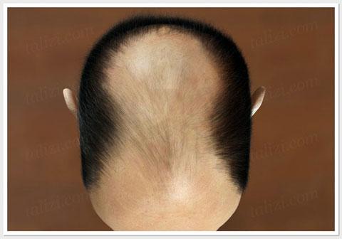 Baldness - ASG Hair Transplant Centre