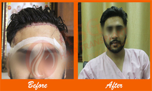 2 Result hair loss Treatment