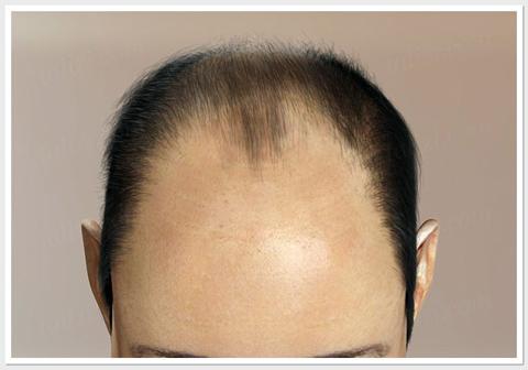 Hair Loss level 5 - ASG Hair Transplant Centre