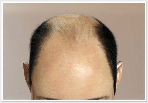 Hair Loss level-6 - ASG Hair Transplant Centre