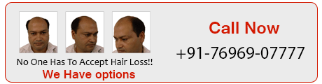 Hair loss offer-banner 2020
