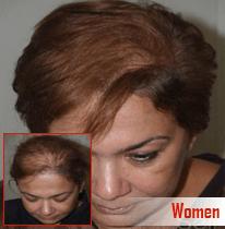 women-hair-transplant
