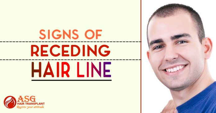 Signs-of-Receding-Hair-Line-696x365