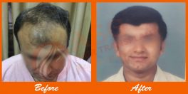 Patient 3: FUT Hair Transplant Before After Results ASG Hair Transplant Centre